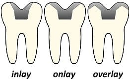 Image displays three teeth with inlay, onlay, and overlay fillings
